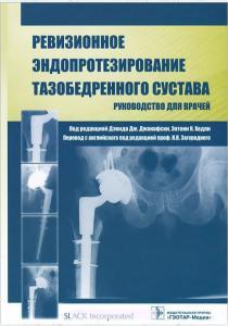 Ревизионное эндопротезирование тазобедренного сустава